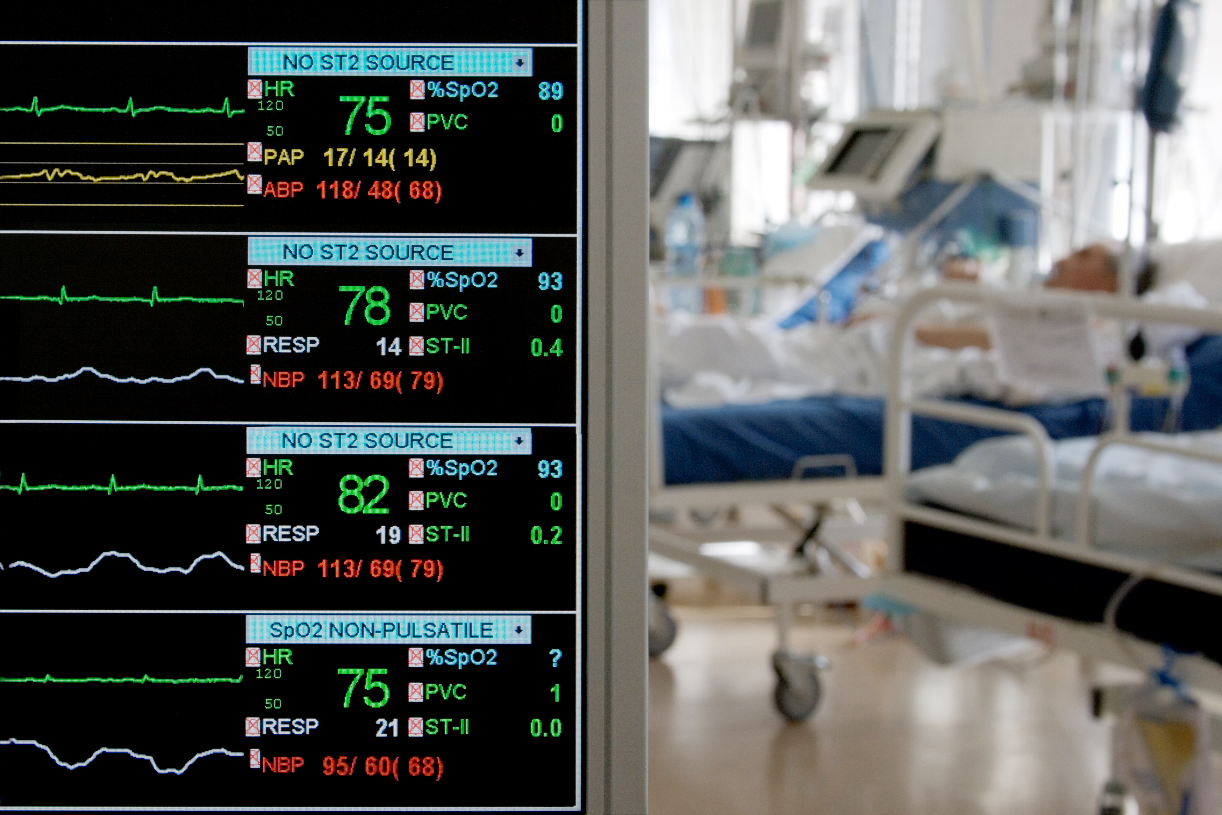 monitoring in ICU with patients